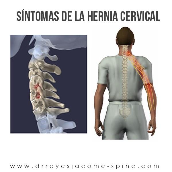 Sintomas de hernia cervical