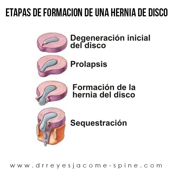 Hernia cervical en matamoros