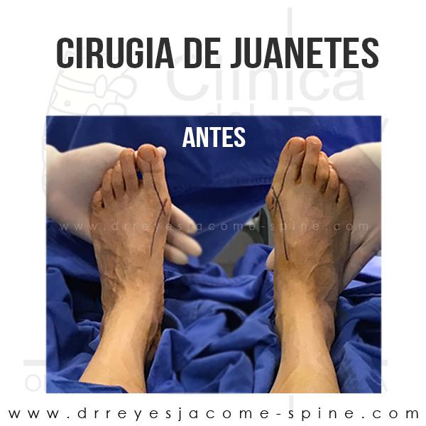 Cirugia de juanetes en Matamoros