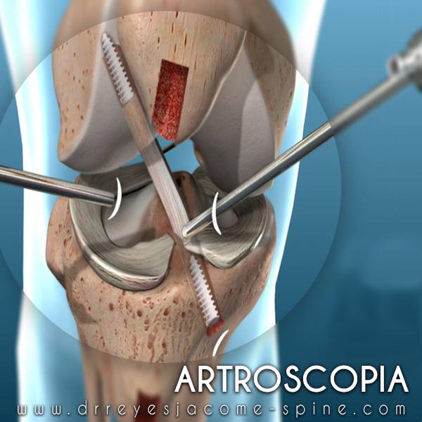 artroscopia de rodilla en matamoros