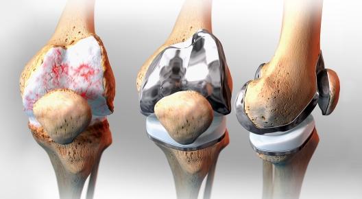 Prótesis de rodilla en Matamoros
