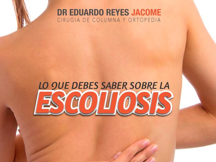 Escoliosis en matamoros
