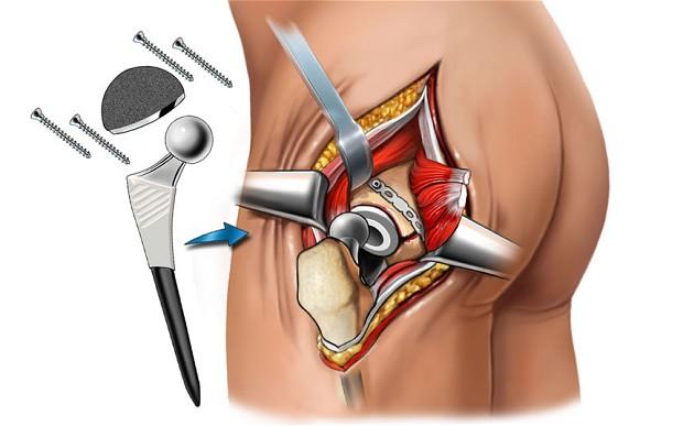 protesis de cadera en matamoros